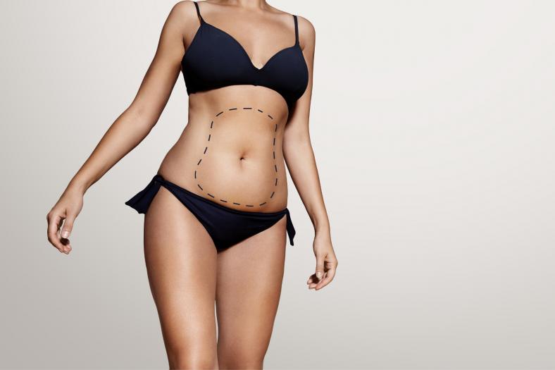 Sieviete pirms tauku atsūkšanas